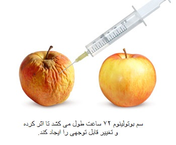تزریق بوتاکس